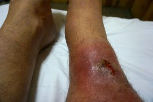 Dealing with a Nasty Infection in Guatemala